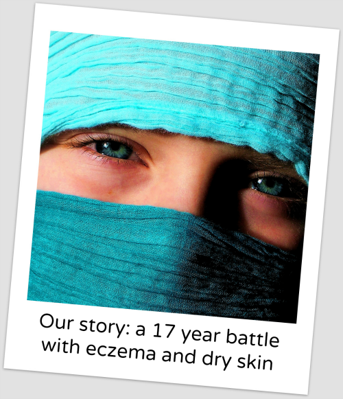 Our Story A 17 year battle with dry skin and eczema